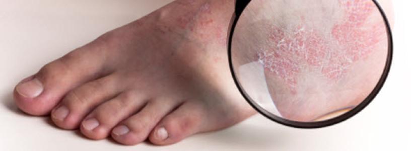 tratament biologic pentru poliartrita reumatoida referati
